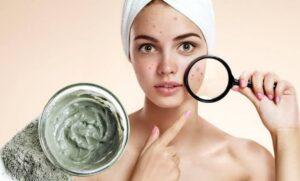 Лечение кожи c Vilkki-estetic